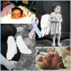 CHERUBS - The Association of Congenital Diaphragmatic Hernia Research - charity reviews, charity ratings, best charities, best nonprofits, search nonprofits