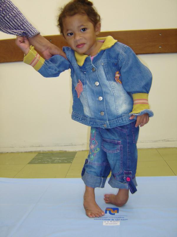 Yasmin in Brazil before treatment