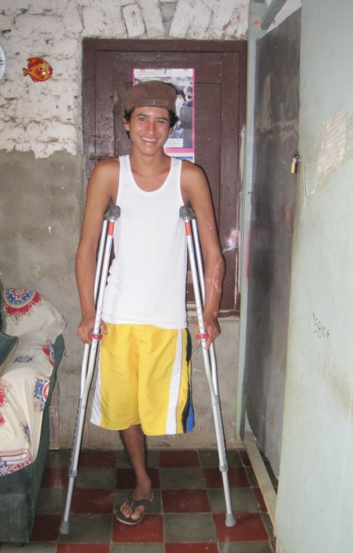 this 21 year old now has a prosthetic leg after loosing his leg 3 years ago in a motorcycle accident