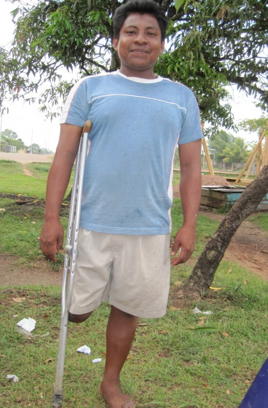 Odispo was born without a leg but now has a prosthetic one