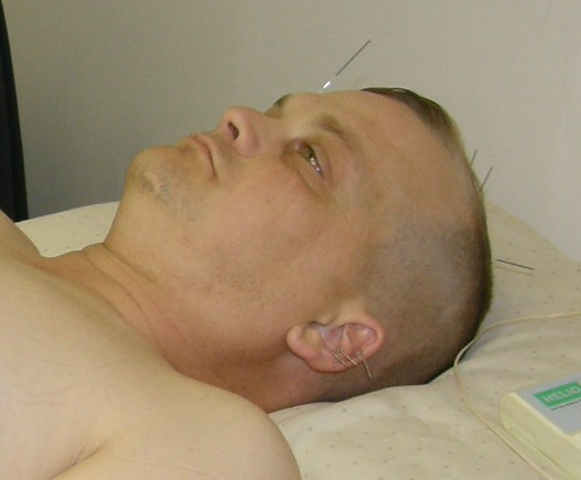 Trevor Gray receiving Acupuncture from an HHN provider
