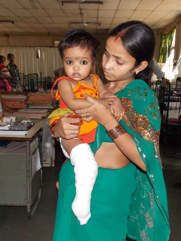 Child in India with clubfoot