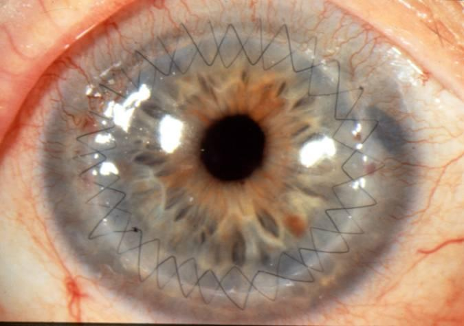 After a cornea transplant!