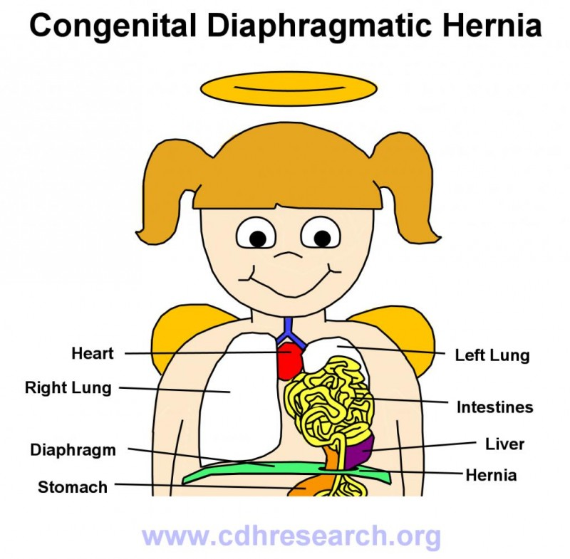 Congenital Diaphragmatic Hernia Research