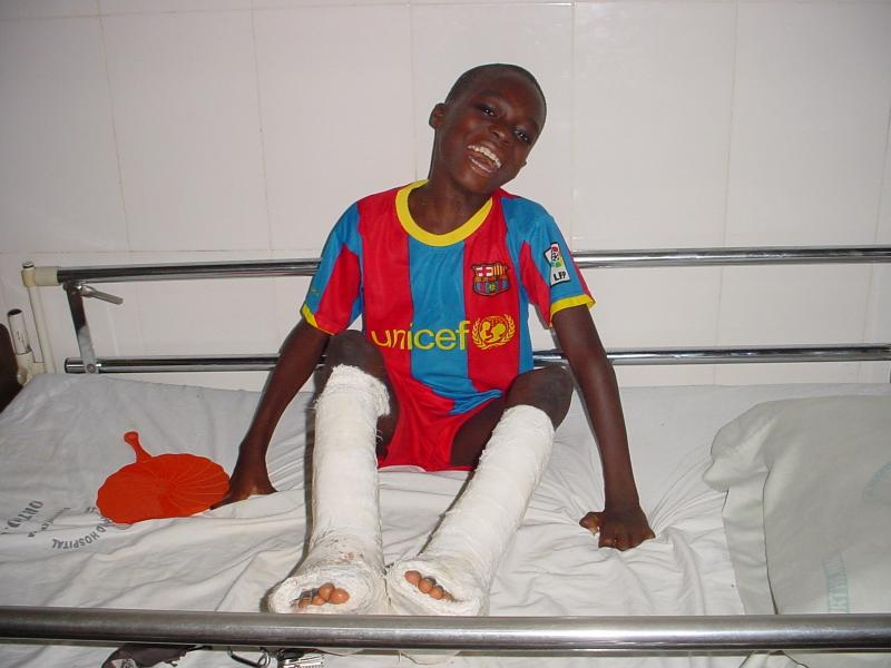 11 year old Bruce was provided surgery from the Heart Smiles to correct club foot