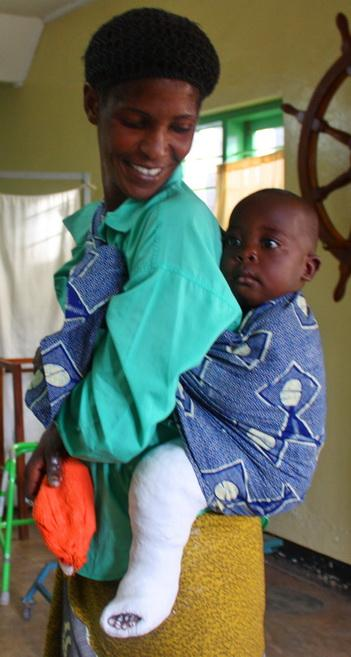 A mom and her child with clubfoot being treated in Tanzania.